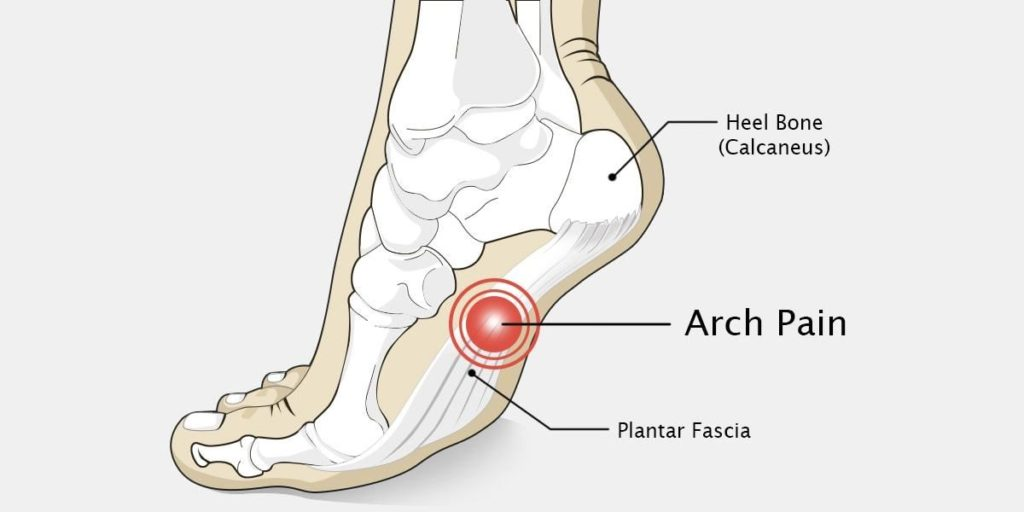 arch pain south west podiatry