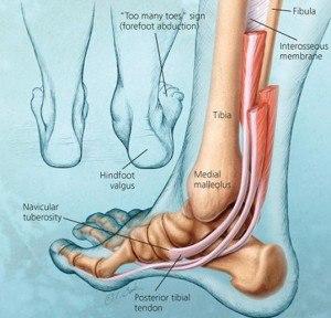 tibialis posterior tendon