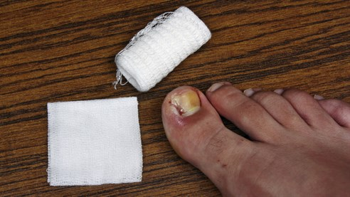 image of an ingrown toenail